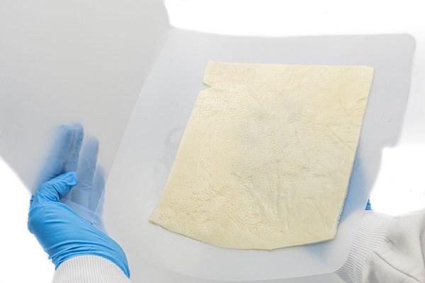 AlloSource Launches Allomend Extra-large Acellular Dermal Matrix