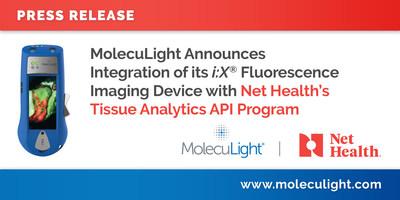 MolecuLight anuncia la integración de su dispositivo de imágenes de fluorescencia i: X®
