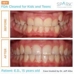 Los alineadores Spark™ reciben la autorización de la FDA para el tratamiento ortodóncico de niños